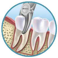 dental_extraction