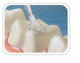 dental_sealants