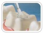 dental_sealants