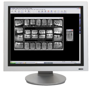 digitalxray