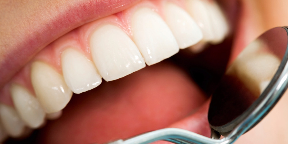 Periodontal Therapy Including Scaling and Root Planing